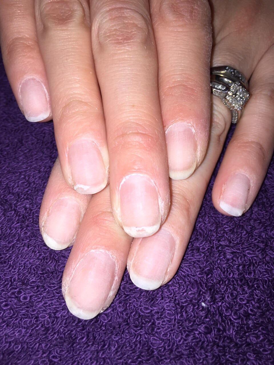ibx treatment – moonshinesnails